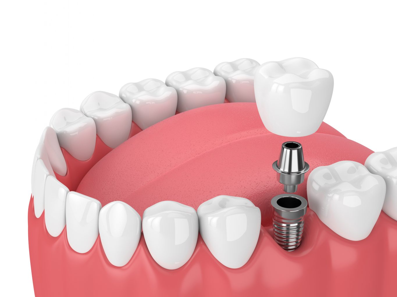3d Render Of Jaw With Teeth And Dental Molar Implant