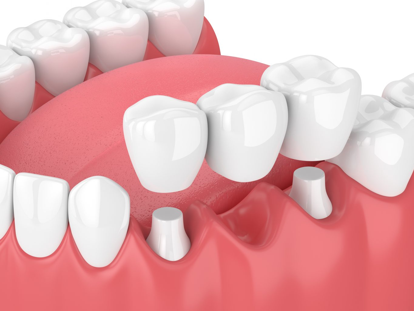 3d Render Of Jaw With Dental Bridge