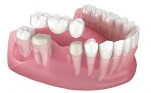 Gum Pain around Dental Bridge